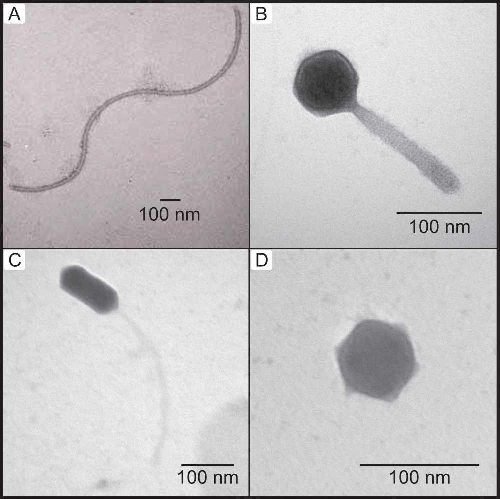 Example of an inovirus viral particle (A) compared with typical dsDNA bacteriophages (B, C, & D) observed with Transmission Electron Microscopy (TEM).